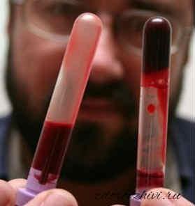 Fibrinogen analiz krovi chto eto1