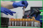 ГГТ в биохимическом анализе крови