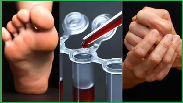 Ревматоидный фактор в анализе крови
