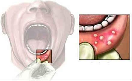 Solkoseril dental'naya adgezivnaya pasta instrukciya po primeneniyu