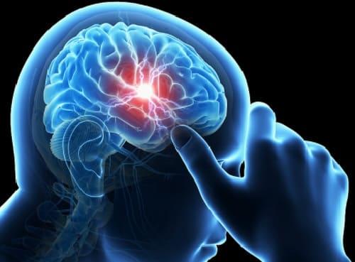 Лечение глиобластомы головного мозга